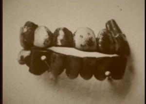Puente dental de oro de Belle.